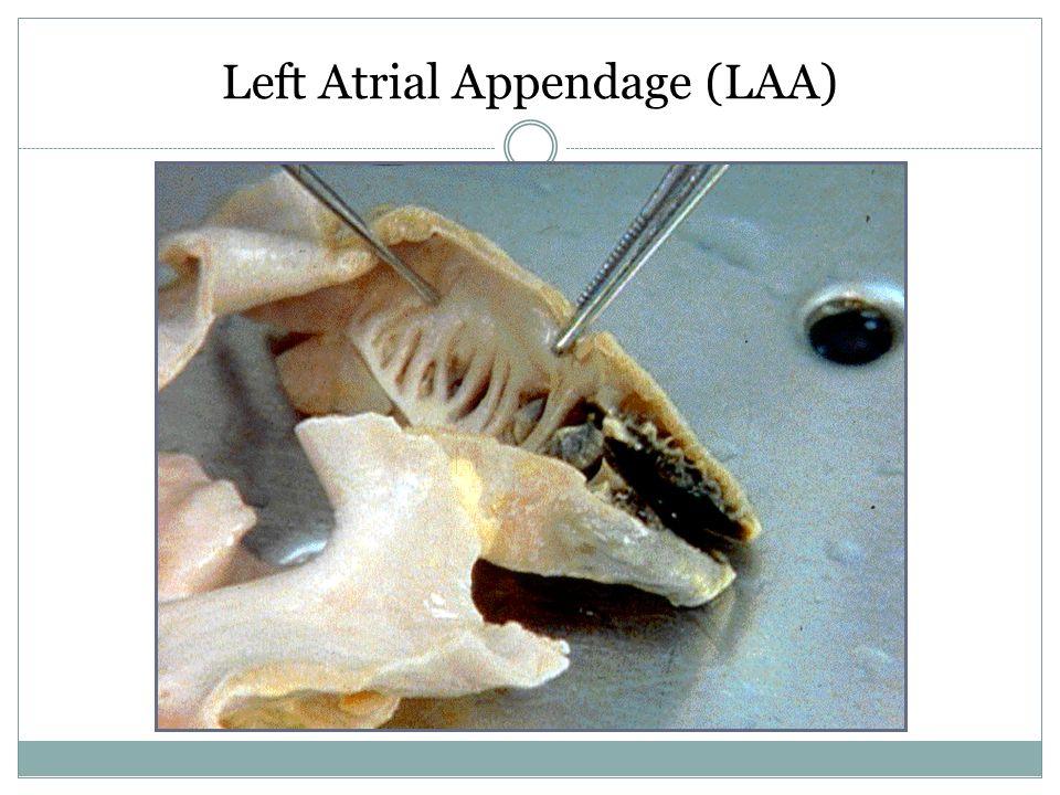 Left Atrial Appendage (LAA)