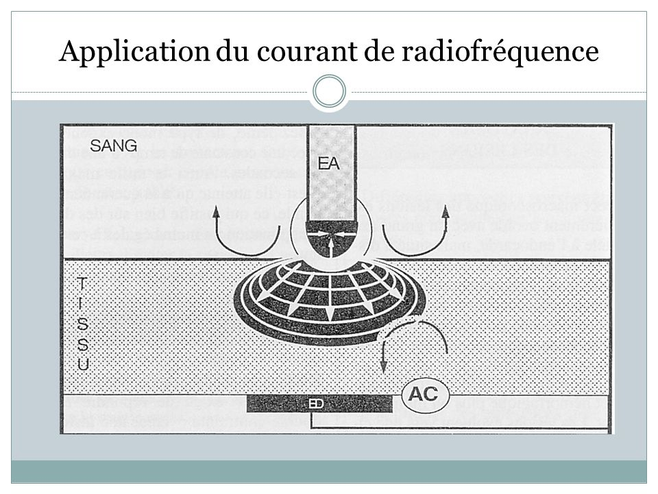 Application du courant de radiofréquence