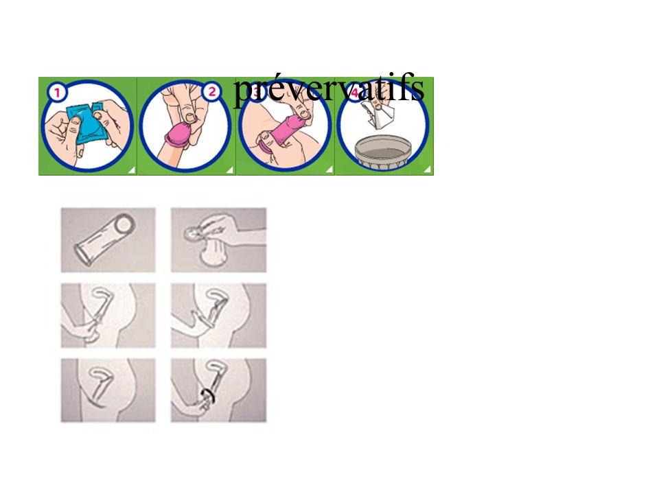 prévervatifs