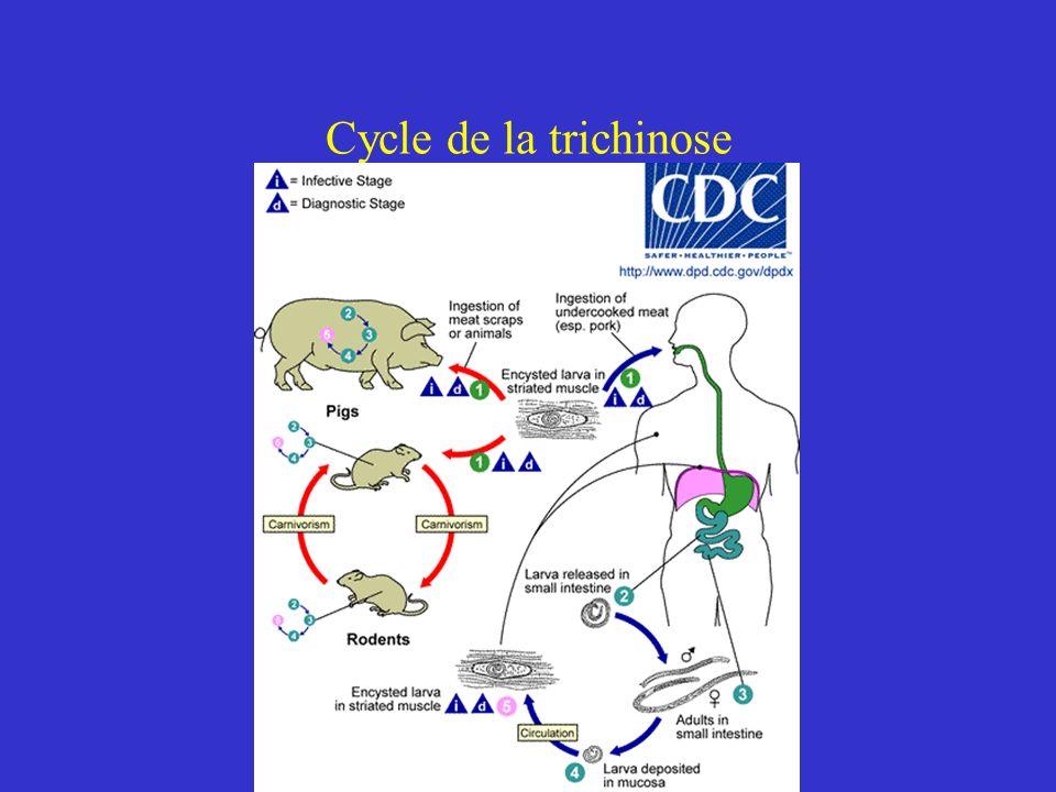 Cycle de la trichinose