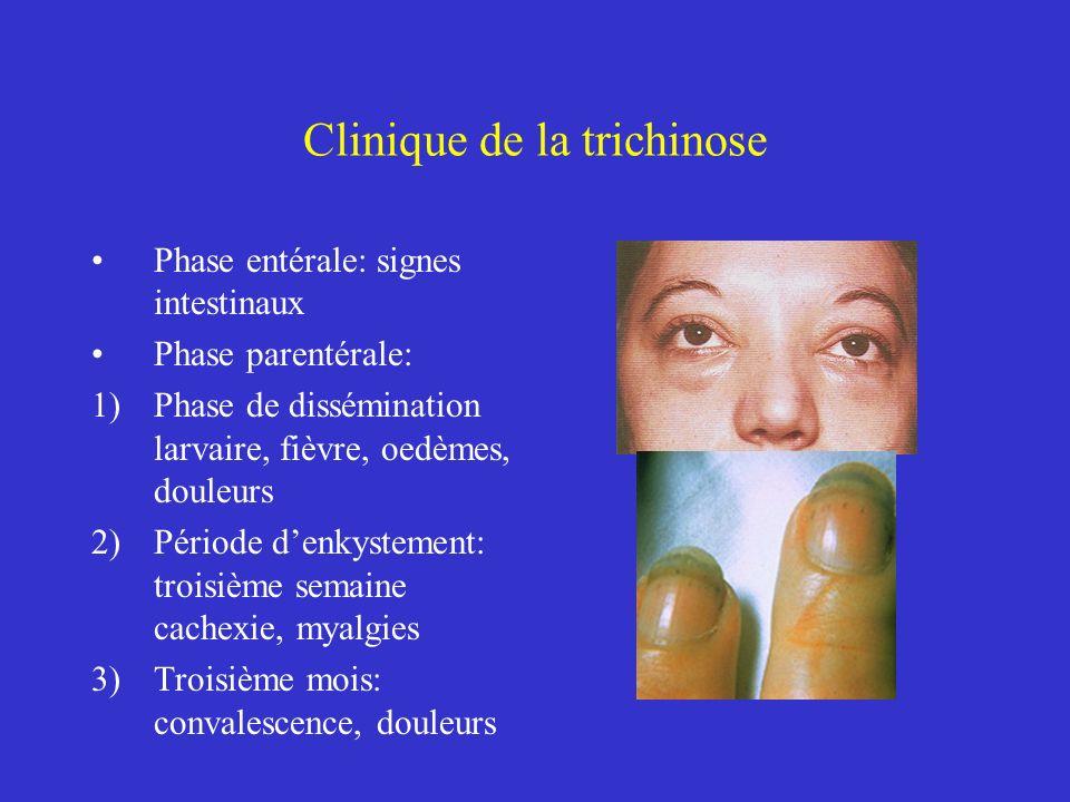 Clinique de la trichinose Phase entérale: signes intestinaux Phase parentérale: 1)Phase de dissémination larvaire, fièvre, oedèmes, douleurs 2)Période