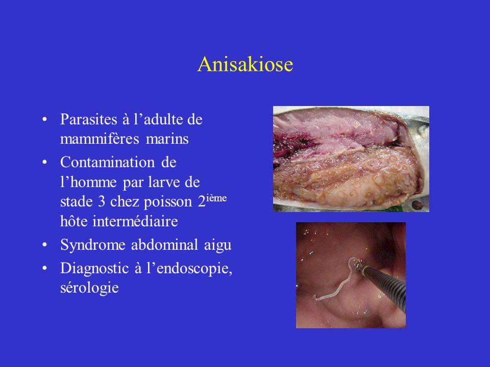 Anisakiose Parasites à ladulte de mammifères marins Contamination de lhomme par larve de stade 3 chez poisson 2 ième hôte intermédiaire Syndrome abdom