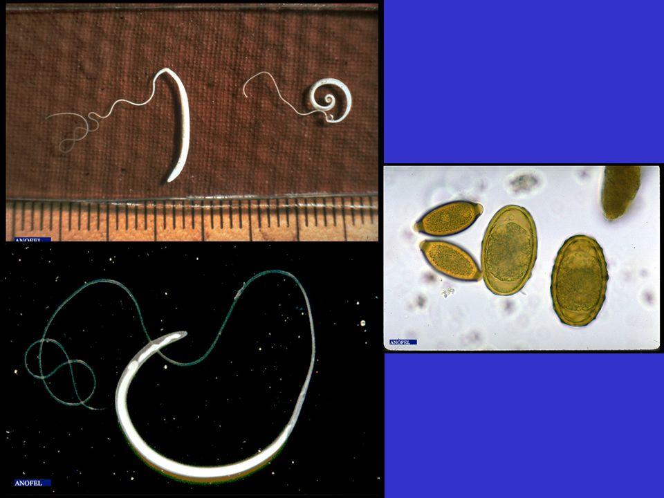 Ankylostomose (Necator americanus, Ankylostoma duodenale) Petits vers hématophages enchâssés muqueuse duodénale Femelles 9-13 mm, mâles 5 à 11 mm Longévité 5 à 10 ans Ankylostoma >Necator Oeufs ovoïdes, coque lisse, 60-70 x 35-40 µm, contenant des blastomères, Larve rhabditoïde 1: 250 à 300 µm sol puis L strongyloïde 500 à 700, 5 ième jour L strongyloïde enkystée infestante, vivant 6 à 10 mois Contamination par voie transcutanée+++