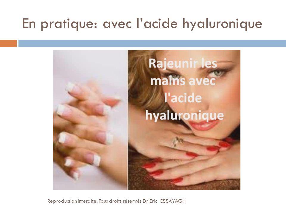En pratique: avec lacide hyaluronique Reproduction interdite. Tous droits réservés Dr Eric ESSAYAGH