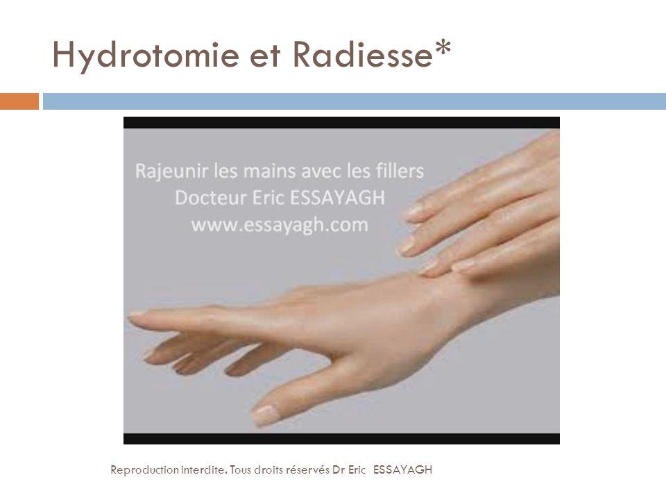 Hydrotomie et Radiesse* Reproduction interdite. Tous droits réservés Dr Eric ESSAYAGH