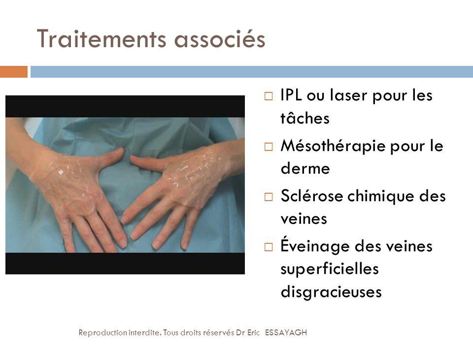 Traitements associés IPL ou laser pour les tâches Mésothérapie pour le derme Sclérose chimique des veines Éveinage des veines superficielles disgracie