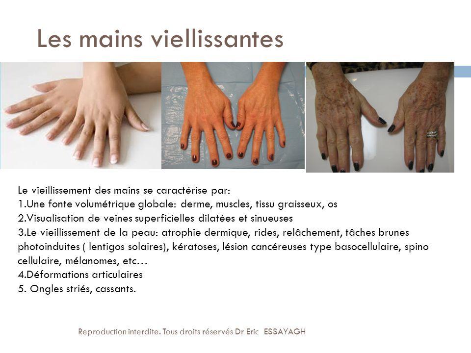 Les mains viellissantes Le vieillissement des mains se caractérise par: 1.Une fonte volumétrique globale: derme, muscles, tissu graisseux, os 2.Visual