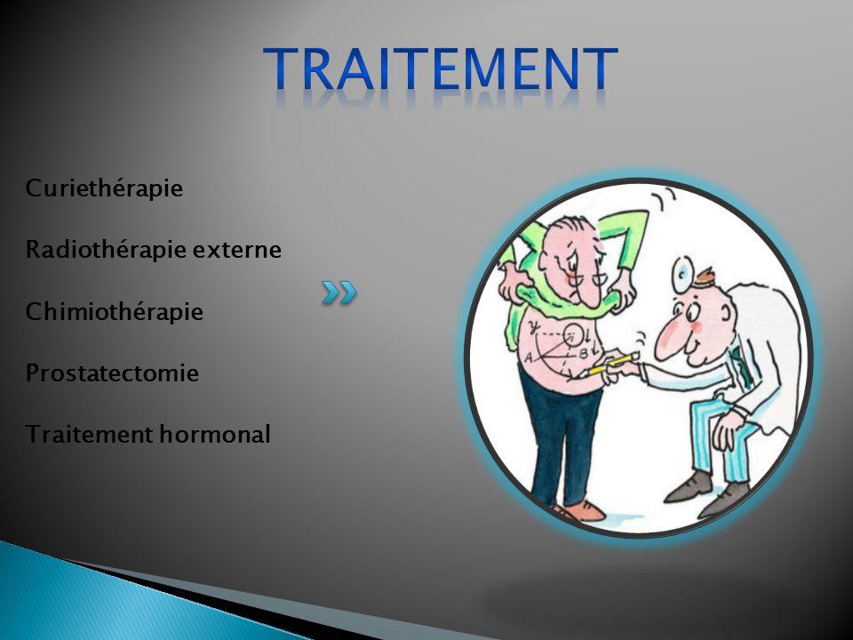 Curiethérapie Radiothérapie externe Chimiothérapie Prostatectomie Traitement hormonal
