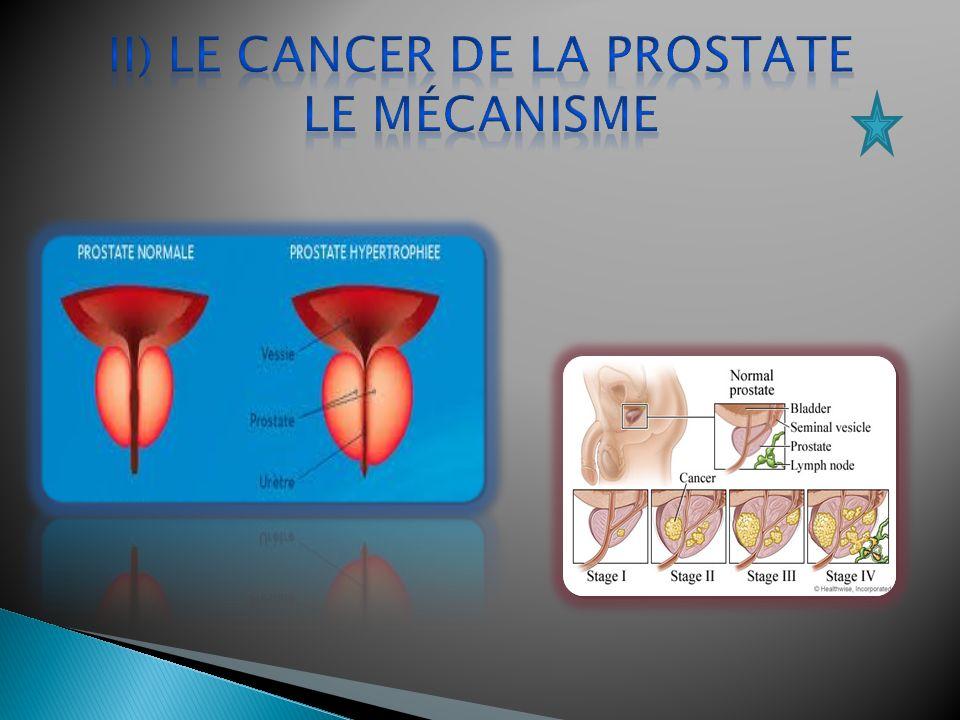 pas de cause principale l âge : plus de 65 ans des antécédents familiaux de cancer de la prostate