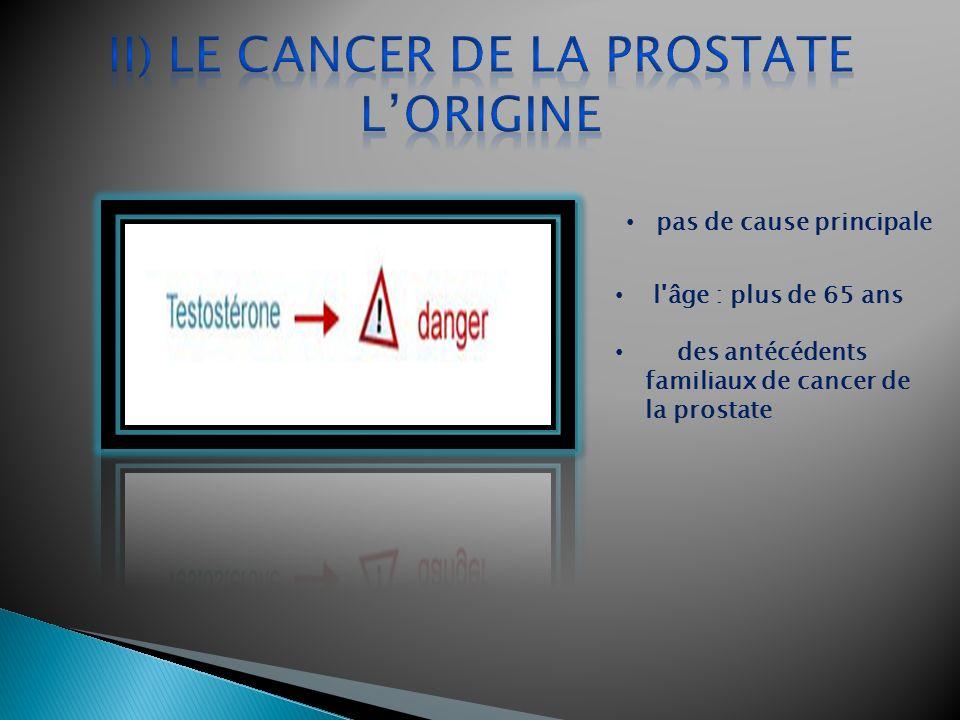 pas de cause principale l'âge : plus de 65 ans des antécédents familiaux de cancer de la prostate