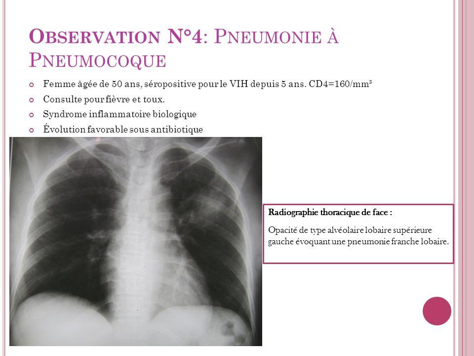 O BSERVATION N°4 : P NEUMONIE À P NEUMOCOQUE Femme âgée de 50 ans, séropositive pour le VIH depuis 5 ans. CD4=160/mm³ Consulte pour fièvre et toux. Sy