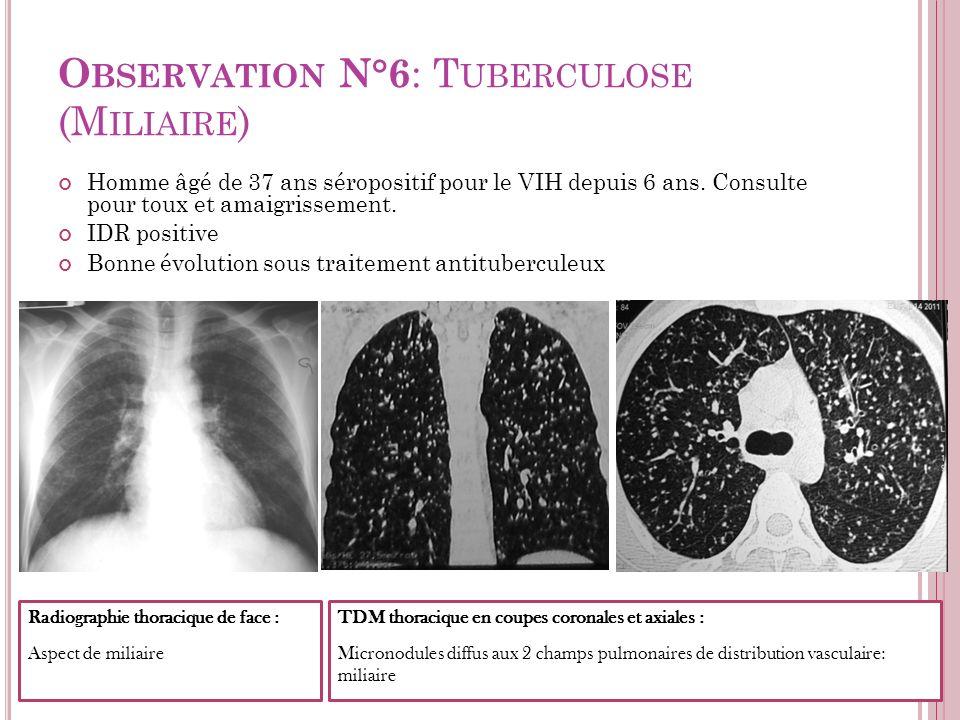 O BSERVATION N°6 : T UBERCULOSE (M ILIAIRE ) Homme âgé de 37 ans séropositif pour le VIH depuis 6 ans. Consulte pour toux et amaigrissement. IDR posit