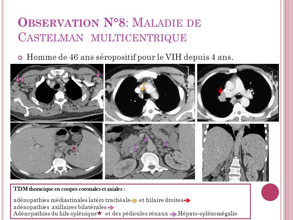 O BSERVATION N°8 : M ALADIE DE C ASTELMAN MULTICENTRIQUE Homme de 46 ans séropositif pour le VIH depuis 4 ans. TDM thoracique en coupes coronales et a