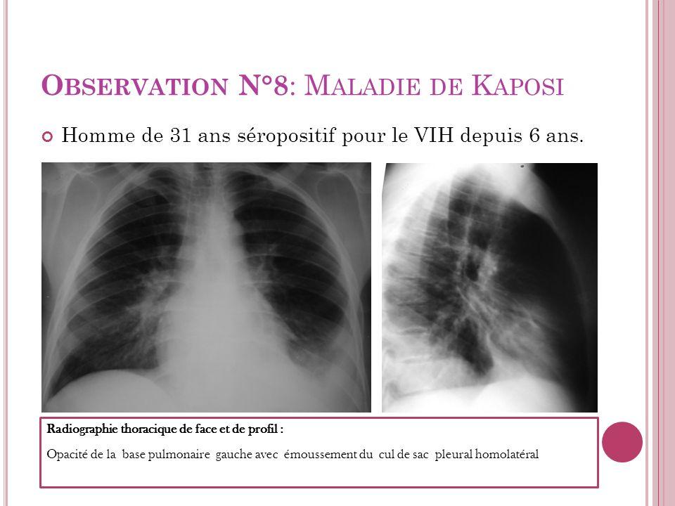 O BSERVATION N°8 : M ALADIE DE K APOSI Homme de 31 ans séropositif pour le VIH depuis 6 ans. Radiographie thoracique de face et de profil : Opacité de