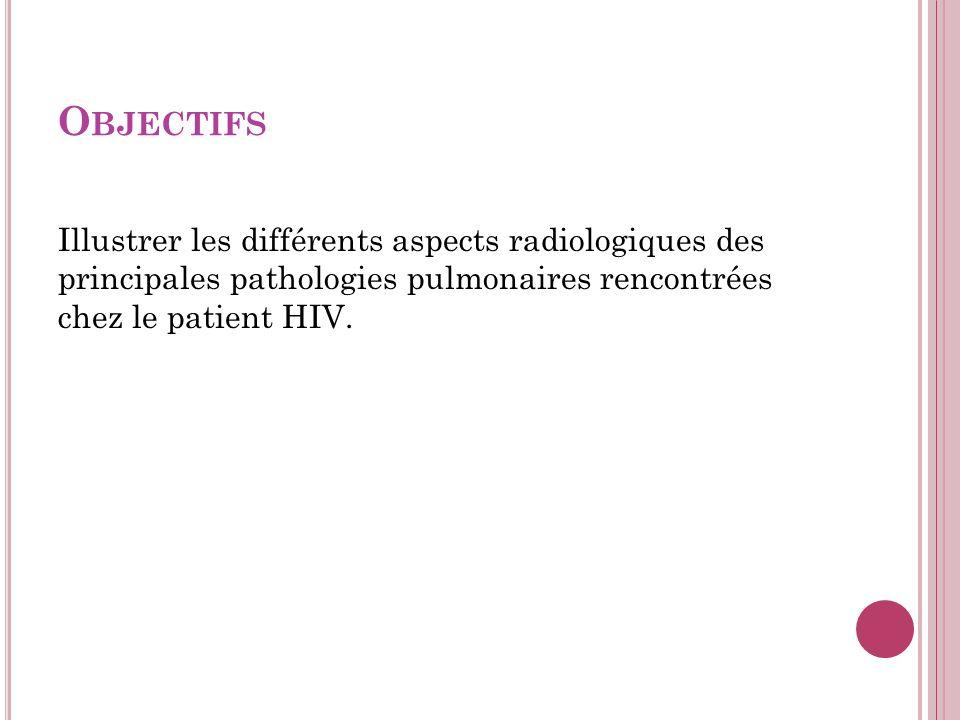 O BJECTIFS Illustrer les différents aspects radiologiques des principales pathologies pulmonaires rencontrées chez le patient HIV.