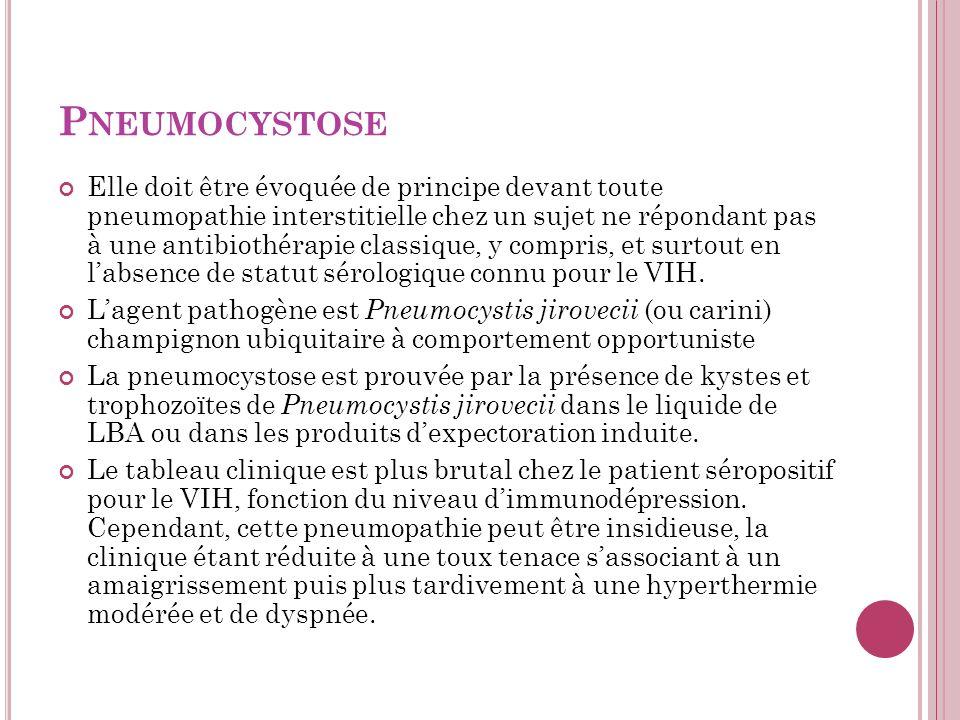 P NEUMOCYSTOSE Elle doit être évoquée de principe devant toute pneumopathie interstitielle chez un sujet ne répondant pas à une antibiothérapie classique, y compris, et surtout en labsence de statut sérologique connu pour le VIH.