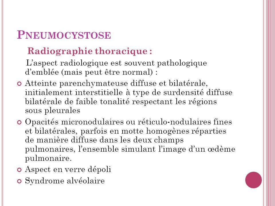 P NEUMOCYSTOSE Radiographie thoracique : Laspect radiologique est souvent pathologique demblée (mais peut être normal) : Atteinte parenchymateuse diffuse et bilatérale, initialement interstitielle à type de surdensité diffuse bilatérale de faible tonalité respectant les régions sous pleurales Opacités micronodulaires ou réticulo-nodulaires fines et bilatérales, parfois en motte homogènes réparties de manière diffuse dans les deux champs pulmonaires, lensemble simulant limage dun œdème pulmonaire.