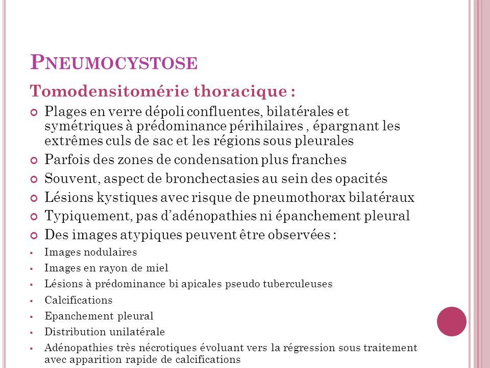 P NEUMOCYSTOSE Tomodensitomérie thoracique : Plages en verre dépoli confluentes, bilatérales et symétriques à prédominance périhilaires, épargnant les