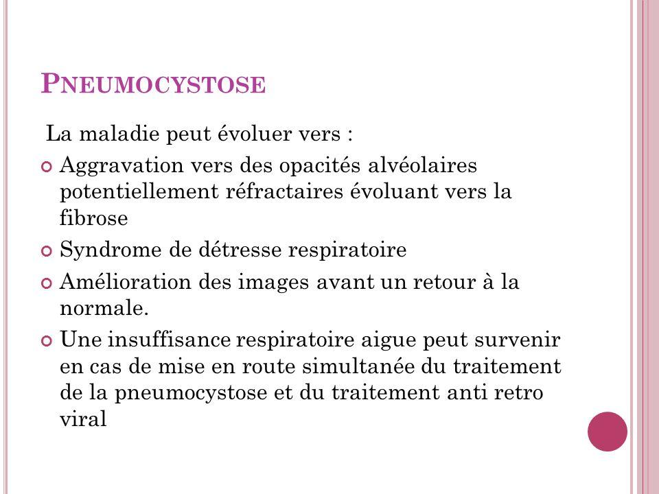 P NEUMOCYSTOSE La maladie peut évoluer vers : Aggravation vers des opacités alvéolaires potentiellement réfractaires évoluant vers la fibrose Syndrome