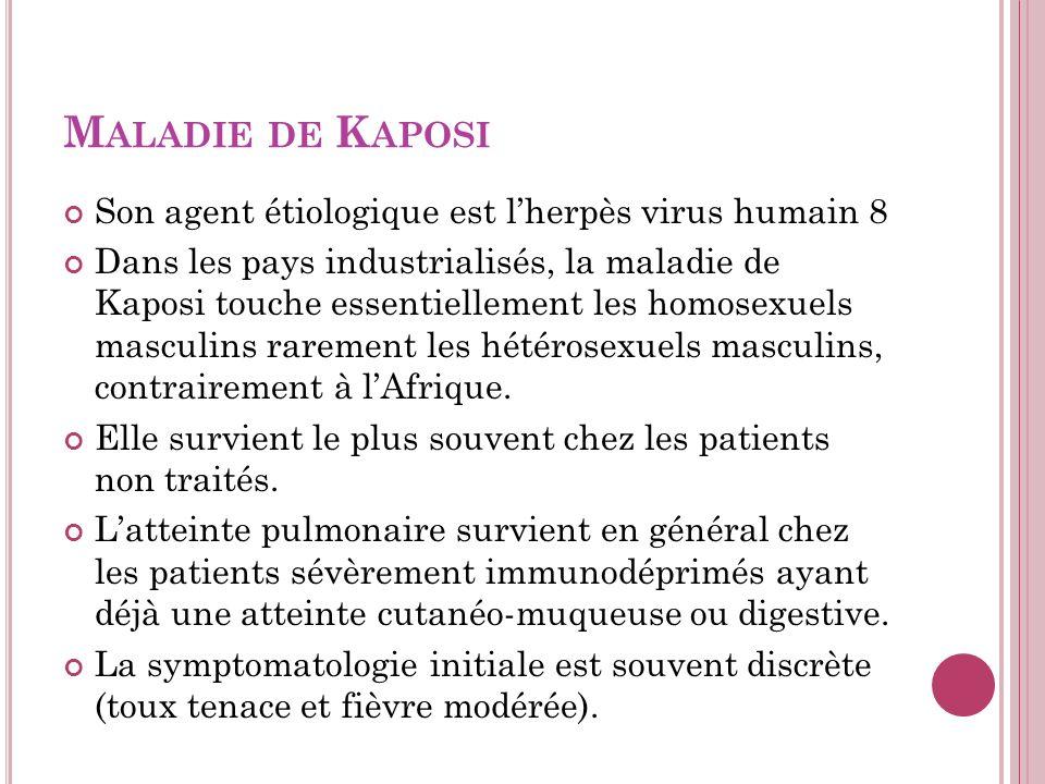 M ALADIE DE K APOSI Son agent étiologique est lherpès virus humain 8 Dans les pays industrialisés, la maladie de Kaposi touche essentiellement les homosexuels masculins rarement les hétérosexuels masculins, contrairement à lAfrique.