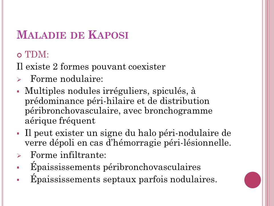 M ALADIE DE K APOSI TDM: Il existe 2 formes pouvant coexister Forme nodulaire: Multiples nodules irréguliers, spiculés, à prédominance péri-hilaire et