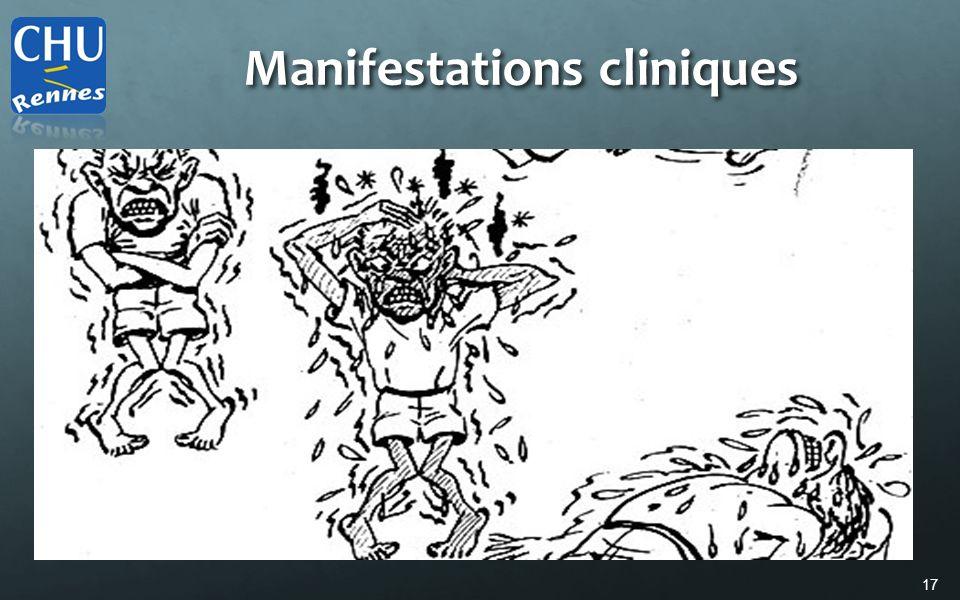 17 Manifestations cliniques