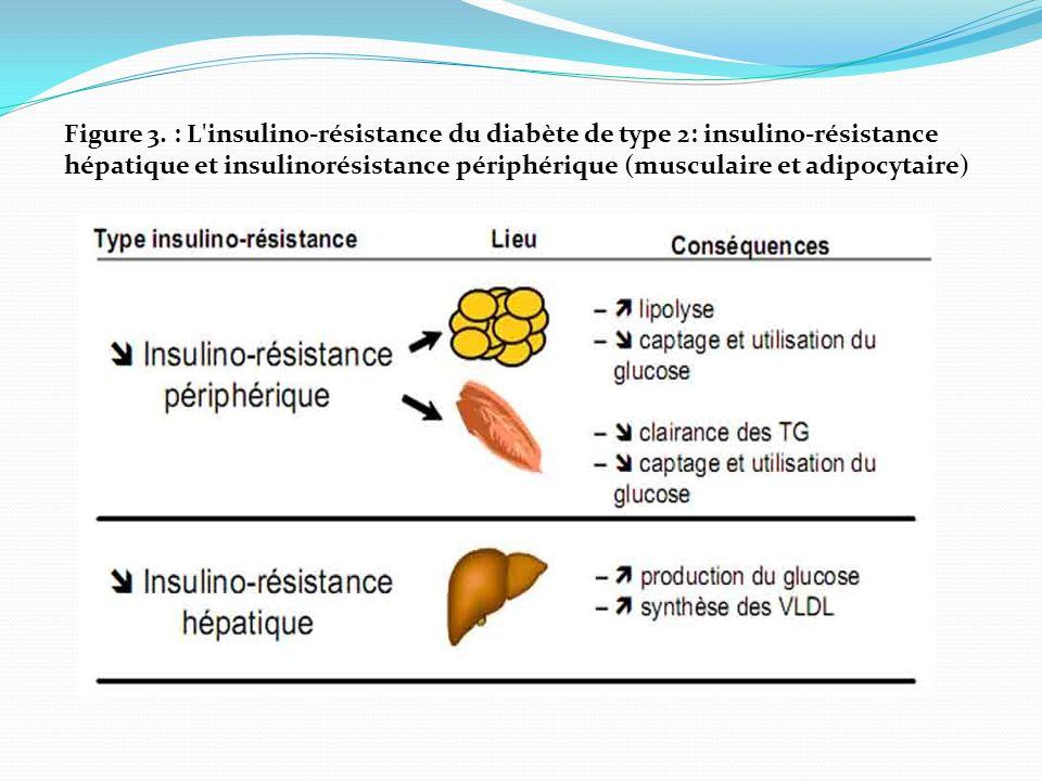 Figure 3. : L'insulino-résistance du diabète de type 2: insulino-résistance hépatique et insulinorésistance périphérique (musculaire et adipocytaire)