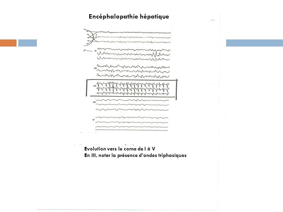Encéphalopathie hépatique Sujet de 33 ans en semi coma Ondes triphasiques typiques