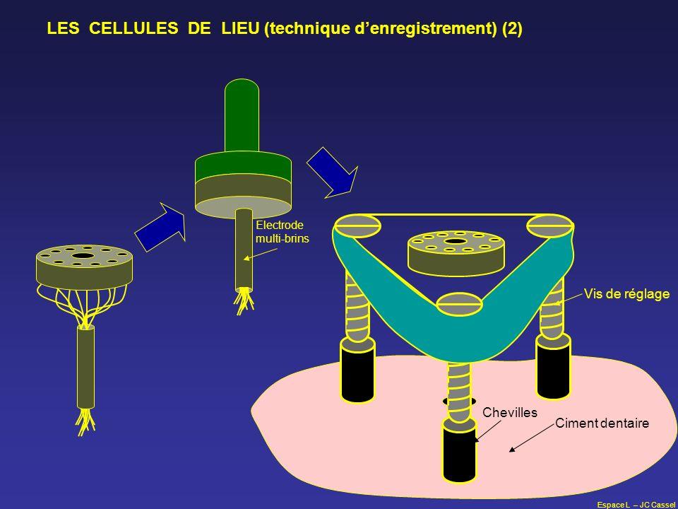 Espace L – JC Cassel Vis de réglage Chevilles Ciment dentaire Electrode multi-brins LES CELLULES DE LIEU (technique denregistrement) (2)