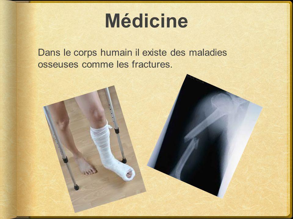 Médicine Dans le corps humain il existe des maladies osseuses comme les fractures.