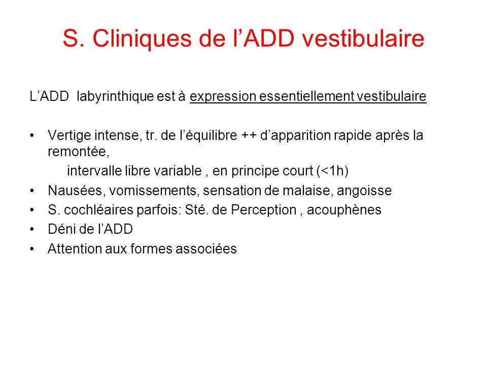 S. Cliniques de lADD vestibulaire LADD labyrinthique est à expression essentiellement vestibulaire Vertige intense, tr. de léquilibre ++ dapparition r