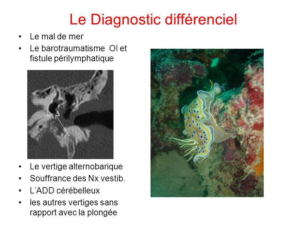 Le Diagnostic différenciel Le mal de mer Le barotraumatisme OI et fistule périlymphatique Le vertige alternobarique Souffrance des Nx vestib. LADD cér