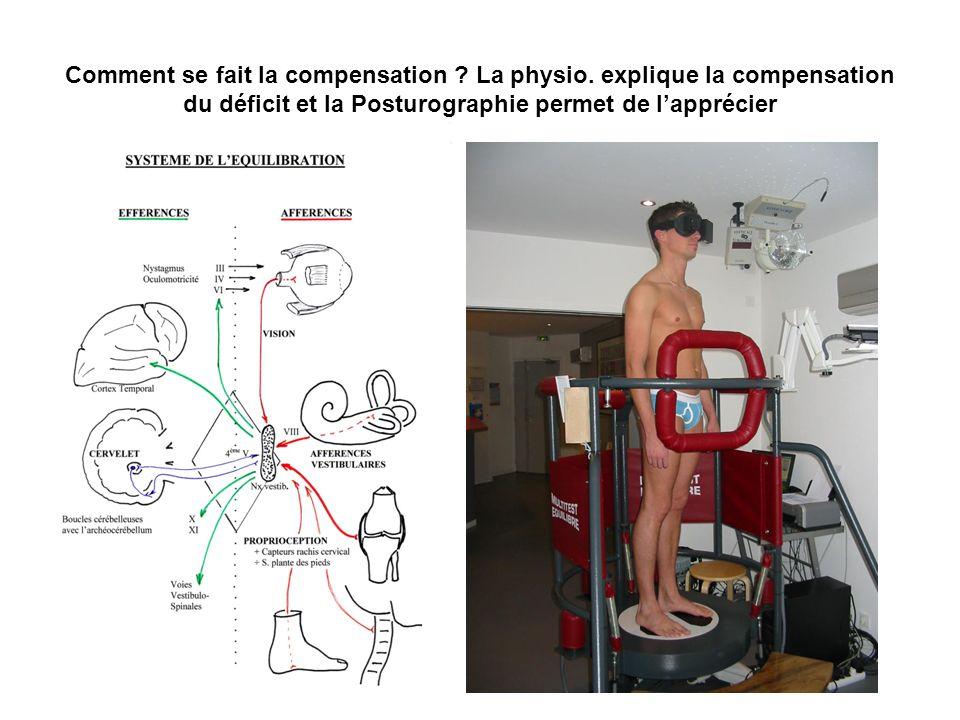 Comment se fait la compensation ? La physio. explique la compensation du déficit et la Posturographie permet de lapprécier