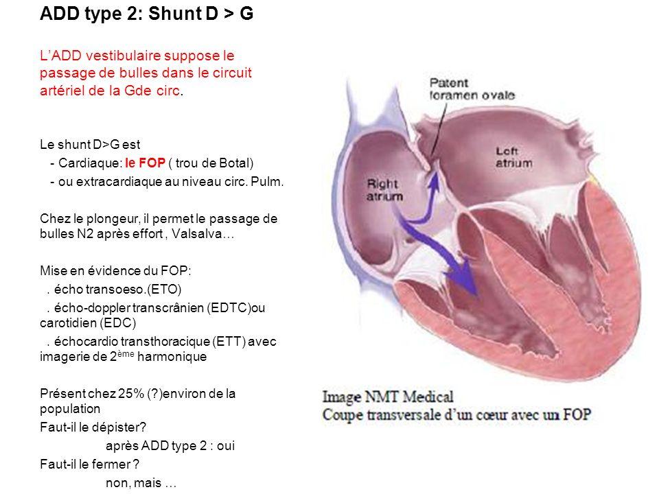 ADD type 2: Shunt D > G LADD vestibulaire suppose le passage de bulles dans le circuit artériel de la Gde circ. Le shunt D>G est - Cardiaque: le FOP (