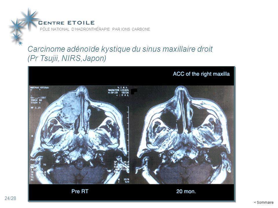 24 Carcinome adénoïde kystique du sinus maxillaire droit (Pr Tsujii, NIRS,Japon) PÔLE NATIONAL DHADRONTHÉRAPIE PAR IONS CARBONE < Sommaire 24/28