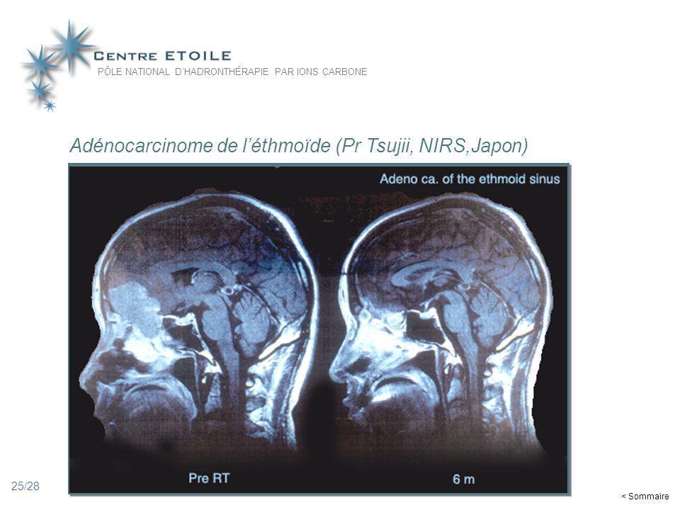 25 Adénocarcinome de léthmoïde (Pr Tsujii, NIRS,Japon) PÔLE NATIONAL DHADRONTHÉRAPIE PAR IONS CARBONE < Sommaire 25/28