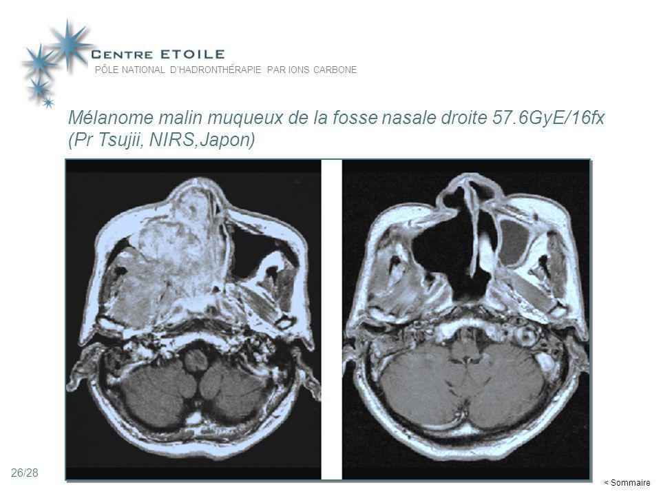 26 Mélanome malin muqueux de la fosse nasale droite 57.6GyE/16fx (Pr Tsujii, NIRS,Japon) PÔLE NATIONAL DHADRONTHÉRAPIE PAR IONS CARBONE < Sommaire 26/