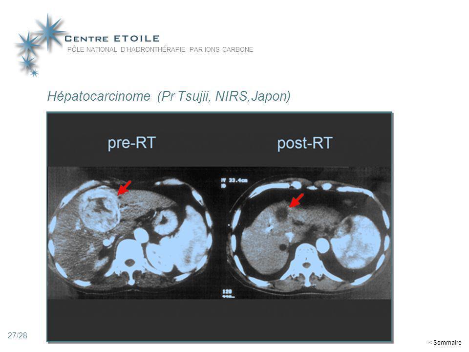 27 Hépatocarcinome (Pr Tsujii, NIRS,Japon) PÔLE NATIONAL DHADRONTHÉRAPIE PAR IONS CARBONE < Sommaire 27/28