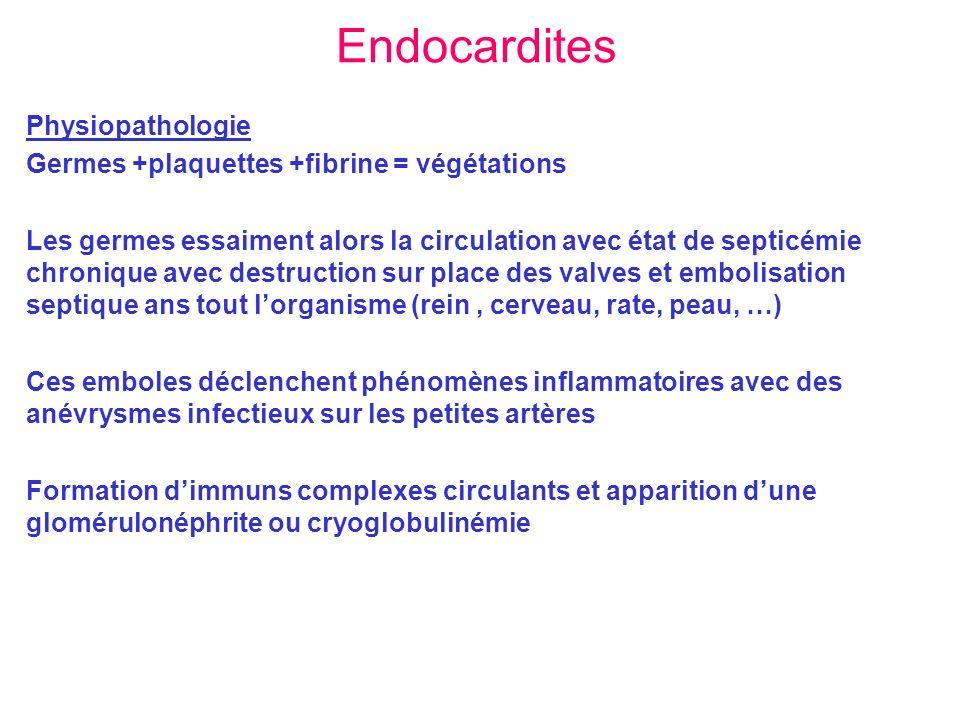Endocardites Physiopathologie Germes +plaquettes +fibrine = végétations Les germes essaiment alors la circulation avec état de septicémie chronique av