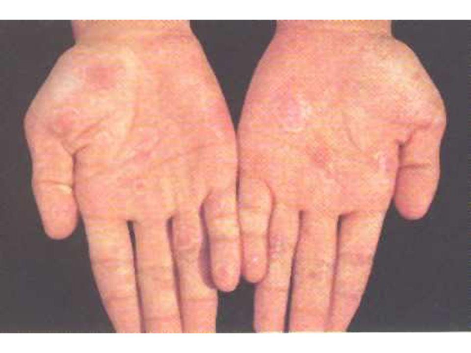 suite syphilis tertiaire des atteintes, graves cardio-vasculaires (arotite, anévrysmes), neurologiques (tabès, paralysie générale), osseuses, ou cutanées (gommes).