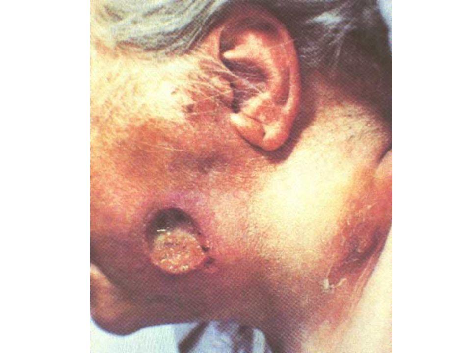 Immunité une immunité très partielle, souvent transitoire immunité humoral et immunité celullaire le traitement de la syphilis à un stade précoce aboutit à une guérison rapide rendant le sujet de nouveau vulnérable (immunité dinfection)