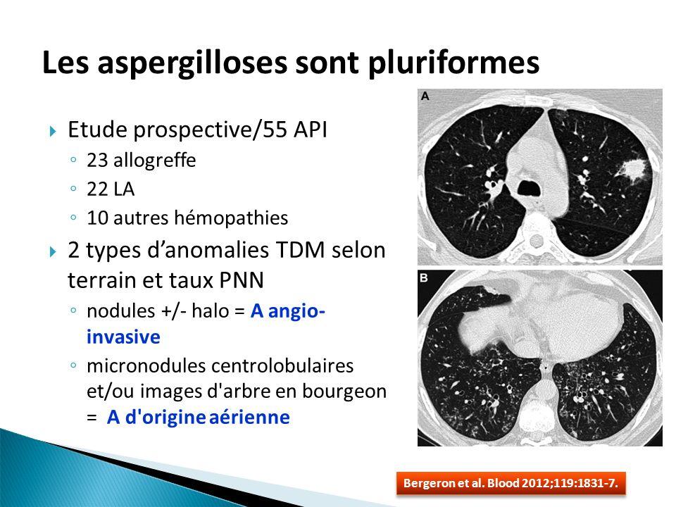 Les aspergilloses sont pluriformes Etude prospective/55 API 23 allogreffe 22 LA 10 autres hémopathies 2 types danomalies TDM selon terrain et taux PNN nodules +/- halo = A angio- invasive micronodules centrolobulaires et/ou images d arbre en bourgeon = A d origine aérienne Bergeron et al.