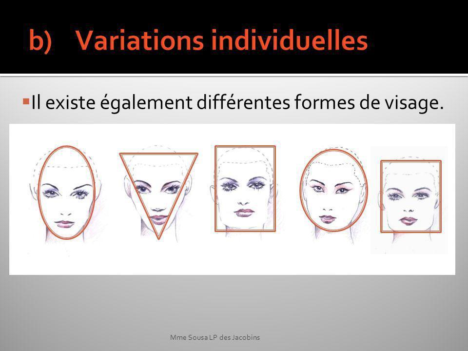 Mme Sousa LP des Jacobins Il existe également différentes formes de visage.