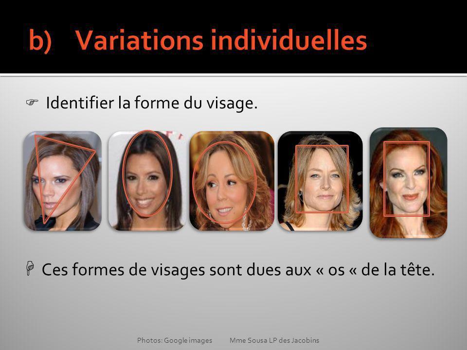 Ces formes de visages sont dues aux « os « de la tête.