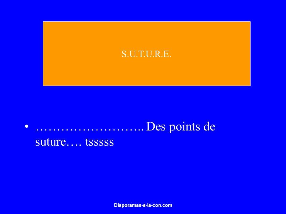 Diaporamas-a-la-con.com …………………….. Des points de suture…. tsssss S.U.T.U.R.E.