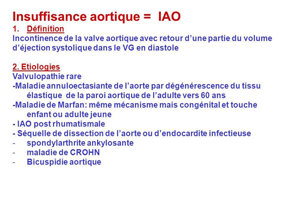 Insuffisance aortique = IAO 1.Définition Incontinence de la valve aortique avec retour dune partie du volume déjection systolique dans le VG en diasto
