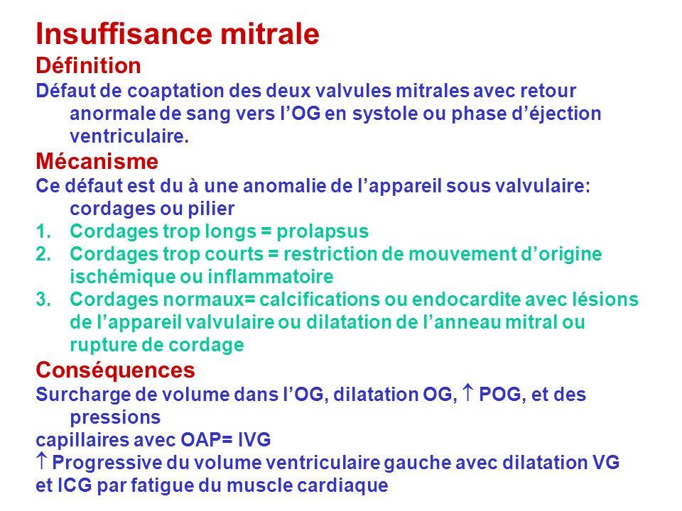 Insuffisance mitrale Définition Défaut de coaptation des deux valvules mitrales avec retour anormale de sang vers lOG en systole ou phase déjection ve