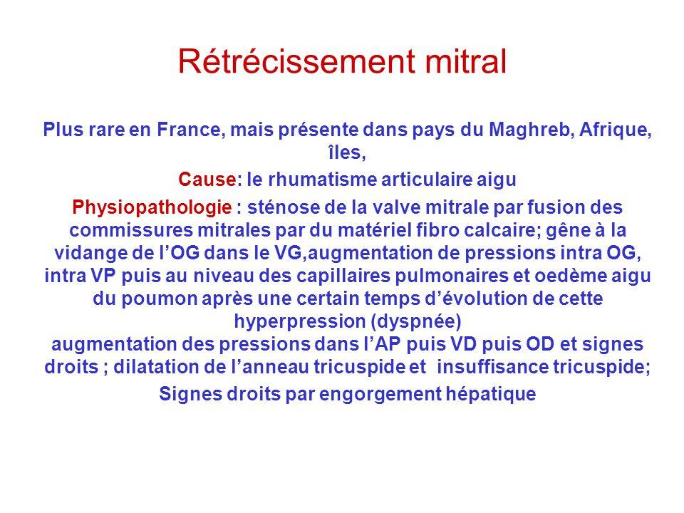 Rétrécissement mitral Plus rare en France, mais présente dans pays du Maghreb, Afrique, îles, Cause: le rhumatisme articulaire aigu Physiopathologie :
