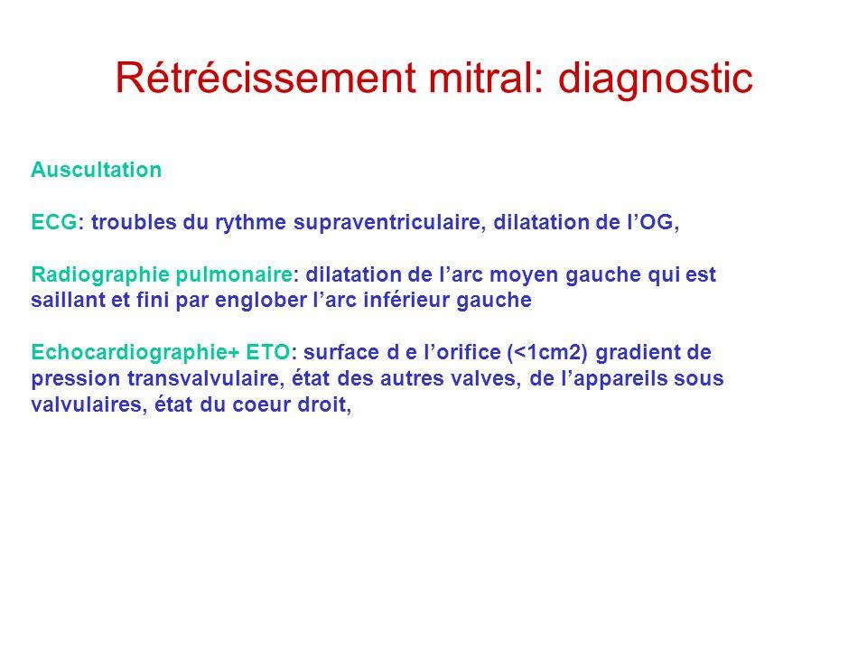 Rétrécissement mitral: diagnostic Auscultation ECG: troubles du rythme supraventriculaire, dilatation de lOG, Radiographie pulmonaire: dilatation de l