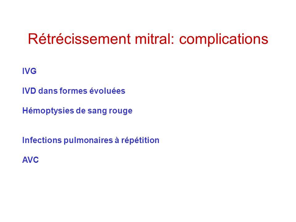 Rétrécissement mitral: complications IVG IVD dans formes évoluées Hémoptysies de sang rouge Infections pulmonaires à répétition AVC